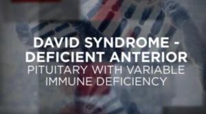 David Syndrome